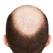 Say good-bye to male pattern baldness