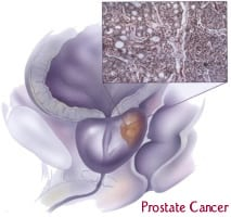 Testosterone not to blame for prostate cancer