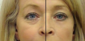 HGH collagen