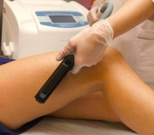 LaserHairRemoval3J