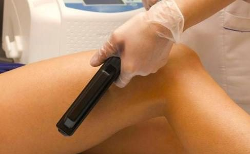 Laser Hair Removal and Men by 3J